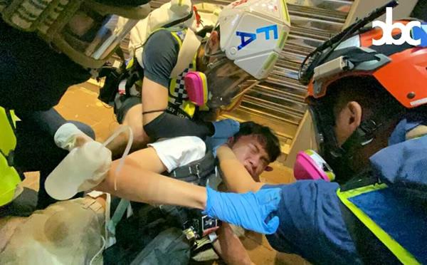 香港警察の催涙弾を背中に受けた救急隊員