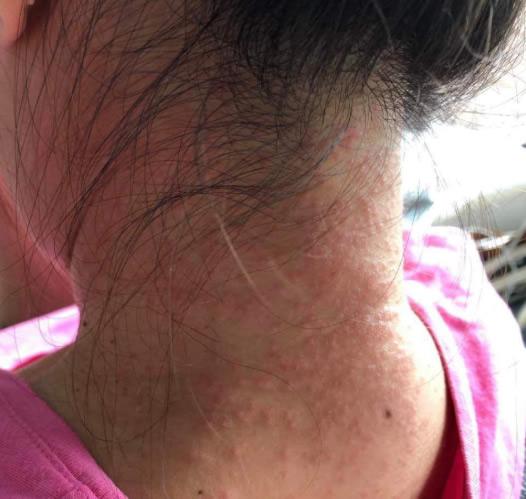 【香港】催涙弾が影響とみられる首の発疹