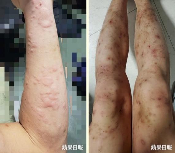 【香港】催涙弾が影響とみられる手足の発疹