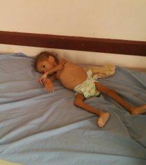 のイエメン人が飢