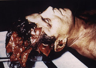 JFK_autopsy.jpg