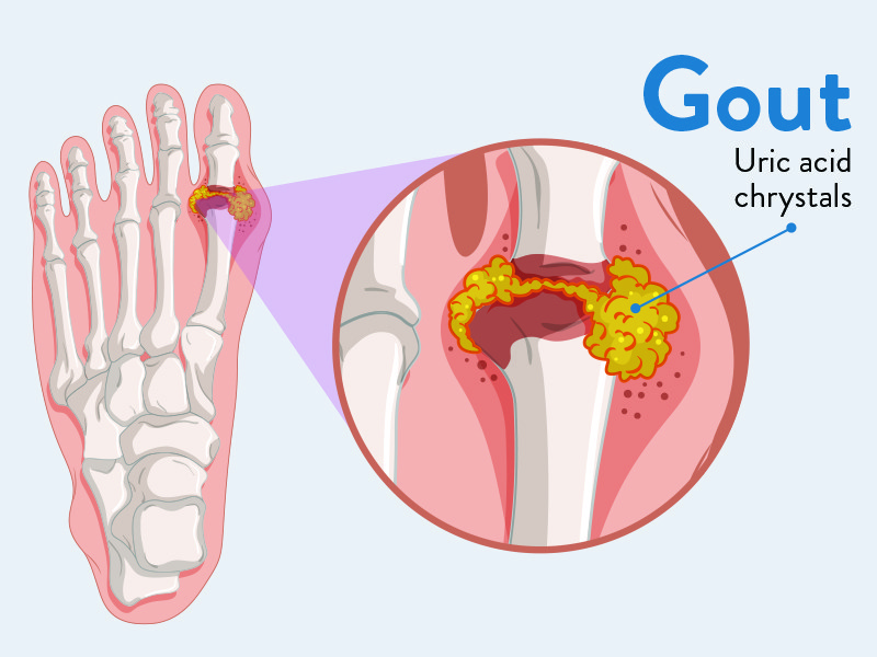 Gout-Treatments.jpg