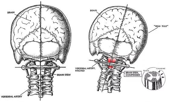 上部頚椎のズレ