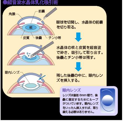 白内障手術・埼玉県草加市の眼科アイケアクリニック