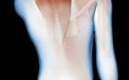 筋肉の緊張B
