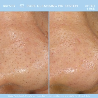 PORE CLEANSING BA - Justina (Custom)