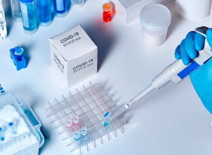 感染管理の専門家に聞きました 「新型コロナウイルス、なぜ希望者全員に検査をしないの?」「検査の精度は?」「『日本で検査が少ないのは政府が感染者数を少なく見せたいから』という陰謀論については?」