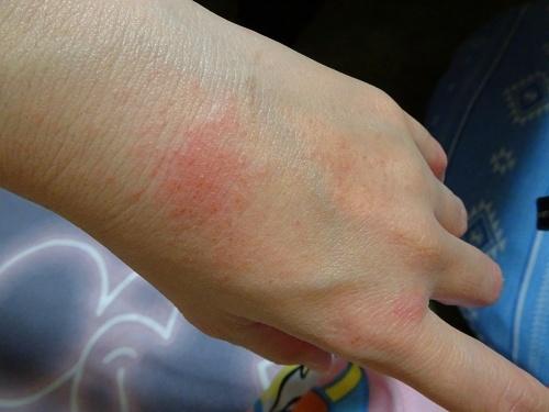 次女の湿疹