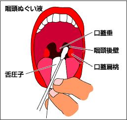 コロナウィルスの診断方法